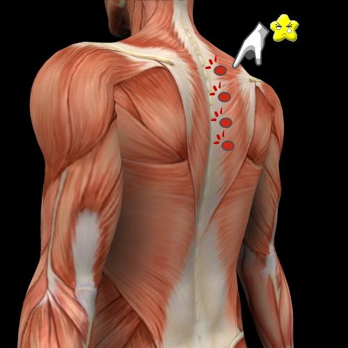 肩引き痛み