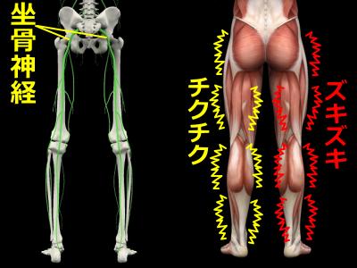 坐骨神経痛モデル図