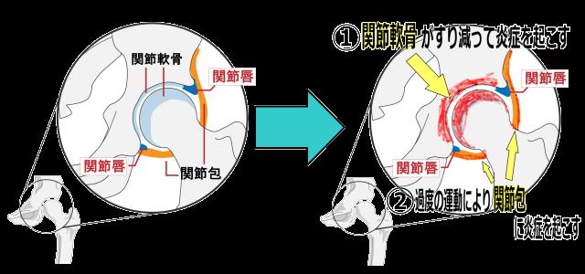 股関節炎症内部図