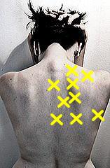 背中の痛みの箇所