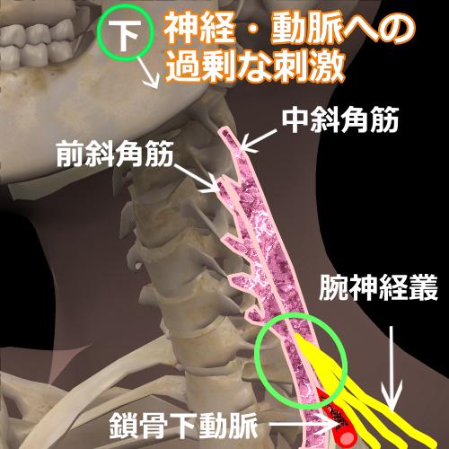 斜角筋症候群モデル図