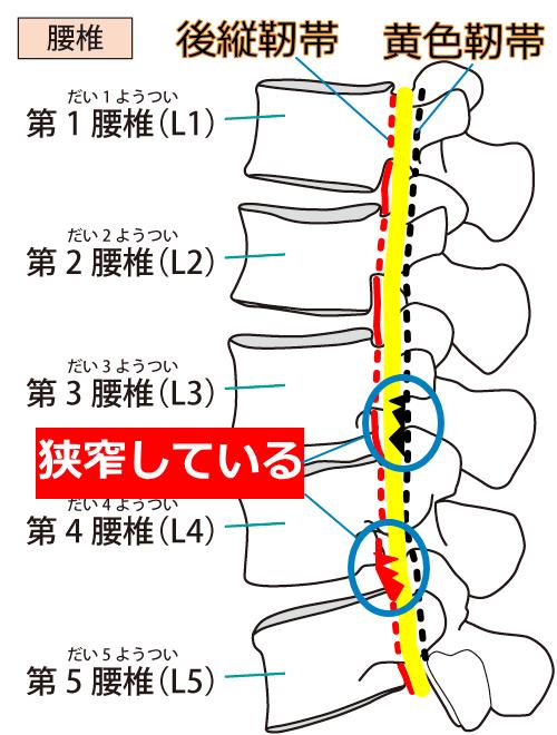 腰部脊柱管狭窄症モデル図