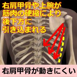 側弯症の脊椎