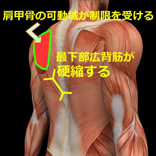 側弯症の筋肉