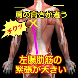 背中の痛みモデル図