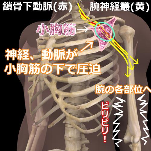 小胸筋症候群モデル図