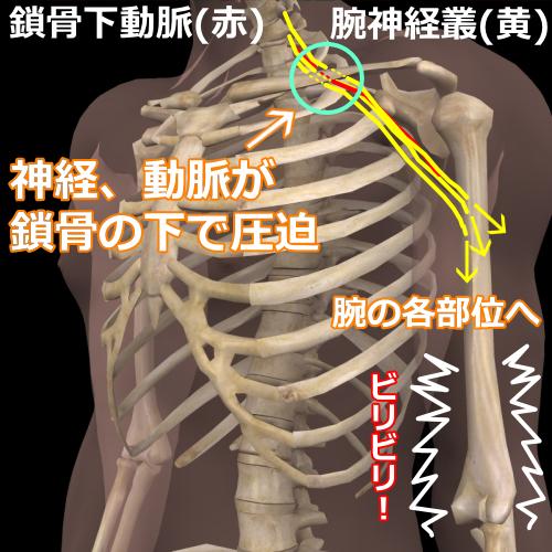 肋鎖症候群モデル図