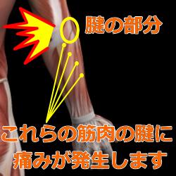 肘の筋肉図