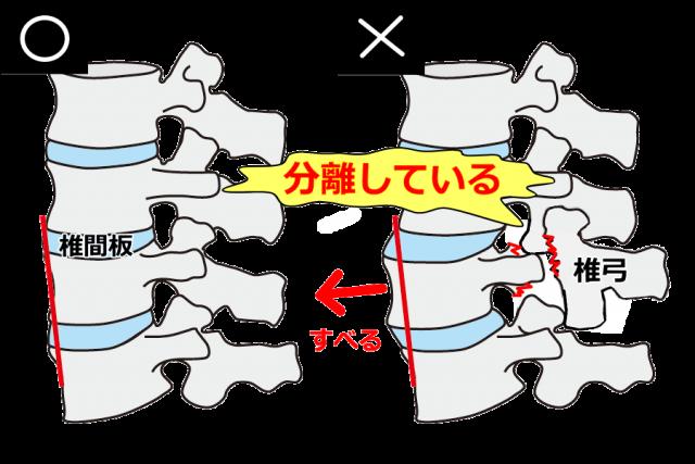 分離症モデル図