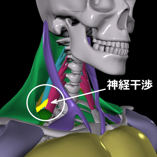 斜角筋症候群図